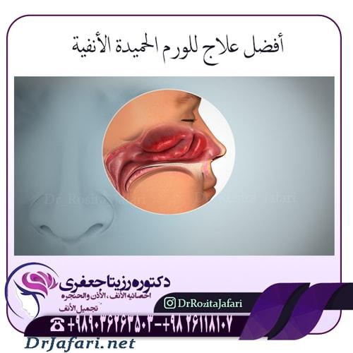 أفضل علاج للورم الحميدة الأنفية