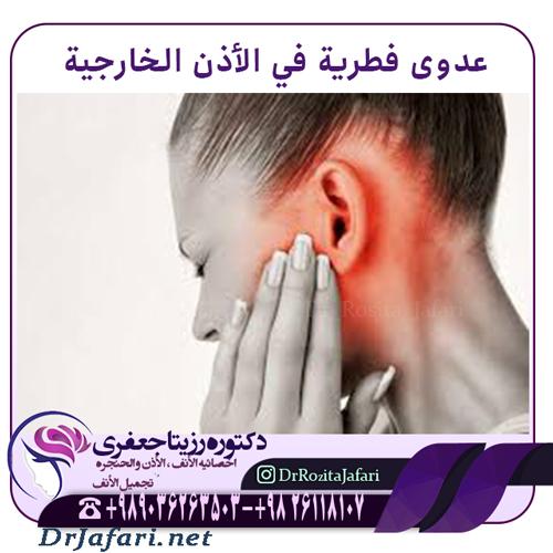 عدوى فطرية في الأذن الخارجية